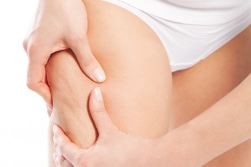 adipe cellulite